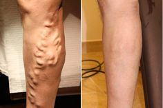 Natural Remedies For Varicose Veins Homeopathic Alternatives for Varicose Vein Treatment Varicose Vein Remedy, Varicose Veins Treatment, How To Get Rid, How To Remove, Les Rides, Natural Cures, Natural Oil, Fett, Arthritis