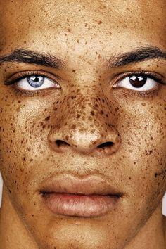 """Der Fotograf Brock Elbank hat sich für sein Foto-Projekt <i>#Freckles</i> auf die Suche nach """"unglaublichen Persönlichkeiten"""" gemacht."""