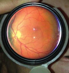 A retinal image obtained using EyeGo. $90