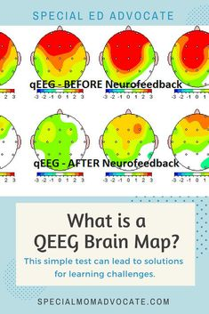 Pin By Nazia Ciske On Psychology In 2021 Brain Map Brain Mapping Special Needs Mom