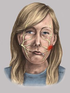 Facial nerve and Bell's palsy by Hannah Bryce Ely