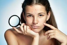 How to Prevent Acne? How to prevent acne? Get rid of acne naturally at home. Top 10 remedies for acne treatment. Ways to cure acne fast. Methods to Heal acne. - How To Prevent Pimples For Teenagers Pimple Marks, Acne And Pimples, Acne Scars, Acne Face, Oily Face, Acne Skin, Oily Skin, Pele Natural, Natural Skin