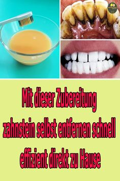 Tooth Pain, Teeth Care, Lose Weight At Home, Mouthwash, Fat Fast, Craft Videos, Lose Belly Fat, Hot Dog Buns, Diy Beauty