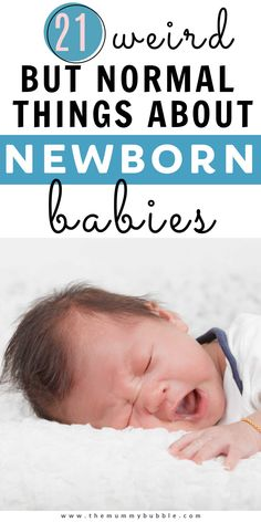 21 strange but totally normal things about your newborn baby new parents need to know! Stuff that you may not expect but is nothing to worry about #newbornbaby Babies First Year, First Time Moms, First Baby, Cradle Cap Treatment, Baby Cradle Cap, Teenage Acne, Baby Information, Preparing For Baby, Baby Massage