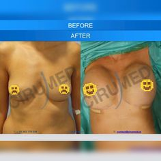 In the bulk of these cases, the issues might have been completely avoided, had actually the person taken more time looking for the most certified surgeon to carry out the surgery and done some additional research study ahead of time. Tummy Tuck Cost, How To Tan, Silicone Implants, Tummy Tucks, Body Contouring, Plastic Surgery, Breast, Medical, Cancer