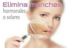 CONSEJOS PARA CHICAS : ELIMINA MANCHAS HORMONALES O SOLARES