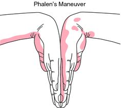 Phalen's maneuver-elbows and hands held at 90 degree angle for at least 1 minute. If pt experiences numbness/tingling in hand/wrist while being tested, this is considered a positive result for carpal tunnel syndrome.