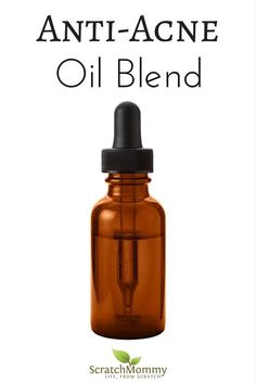 Struggles with acne? You need to check out our secret ingredient Anti-Acne Oil Blend Recipe (effective & simple DIY)- Scratch Mommy