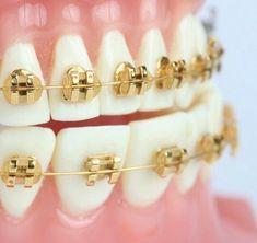 [Gold braces – I think they look like jewelry on the teeth. I wore regular, silv… [Gold braces – I think they look like jewelry on the teeth. I wore regular, silver braces. I wanted clear braces. Braces Tips, Kids Braces, Dental Braces, Teeth Braces, Silver Braces, Cute Braces Colors, Grills Teeth, Brace Face, Gap Teeth