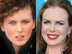 Nicole Kidman #cosmeticdentistry #veneers #niceteeth #perfectsmile