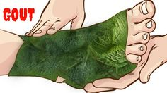 Gout Natural Remedy | Wrap Your Feet In Cabbage Leaves, See The Surprisi...
