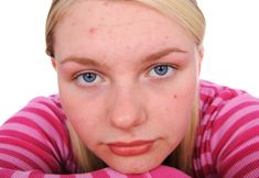 I help highly sensitive teens expand their 'window of tolerance', so they are not triggered into states of acute stress, rage, tension, and panic. www.LosAngelesTeenTherapist.com