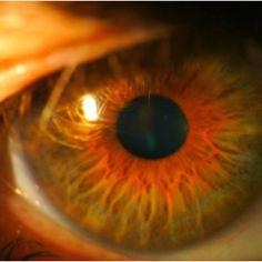my #eye, mijn #oog. microscope photography  optiek Van der linden. Zele. Www.optiekvanderlinden.be