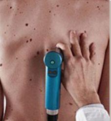 Η σημασία της χαρτογράφησης σπίλων για την πρόληψη του καρκίνου του δέρματος