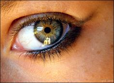 Rare Eye Color | What are the rarest eye colors? - Yahoo Answers