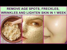 Today I am going to share with you the best face mask, Remove Age Spots, Freckles, Wrinkles, Excess Face Fat And Lighten Your Skin In A Week. Face Wrinkles, Prevent Wrinkles, Age Spots On Face, Face Age, Skin Spots, Age Spot Removal, Lighten Skin, Homemade Face Masks, Wrinkle Remover