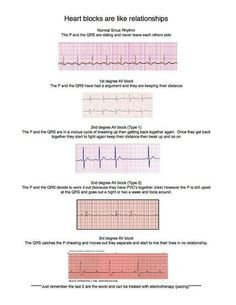 Heart blocks are like a relationship.