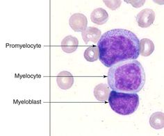 Myeloblast : Highest N/C ratio - Finest nuclear chromatin pattern ||| Promyelocyte : Presence of primary azurophilic granules - Cytoplasm is moderate blue color ||| Myelocyte : Lowest N/C ratio - Muddy gray cytoplasmic color - Secondary granules are present - Nuclear chromatin is more clumped