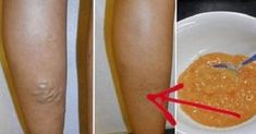 Natural Remedies for Varicose Veins. How to Get Rid of Varicose Veins Fast Naturally. What are varicose veins? The word Natural Remedies For Heartburn, Holistic Remedies, Natural Health Remedies, Varicose Veins Causes, Varicose Vein Remedy, Foot Remedies, Acne Remedies, Cellulite, Rid