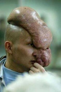 head abnormality