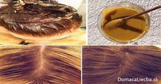 Zastavte vypadávanie vlasov: S týmto receptom porastú ako z vody - Domáca liečba