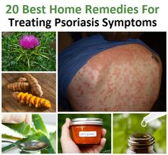 Here are twenty of the best scientifically backed home remedies for treating psoriasis symptoms at home.