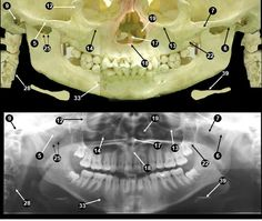 Dentistry lectures for MFDS/MJDF/NBDE/ORE: Anatomical Landmarks Of Panoramic Radiographs......with ppt lecture note for download