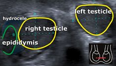 scrotal ultrasound - Startradiology
