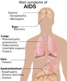 hiv symptoms - Google Search