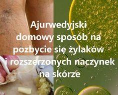 domowy-sposob-na-zylaki-jak-sie-pozbyc-zylakow-naturalnie-ajurwedyjska-metoda