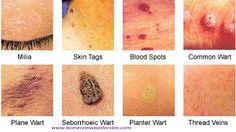 Warts on the Face and how to treat them