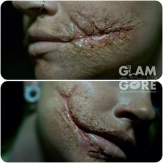 Batman's Joker scars without the face paint. Made with rigid collodion and 3rd degree. For more makeup looks and tutorials: www.instagram.com/Mykie_ www.youtube.com/GlamAndGoreMakeup