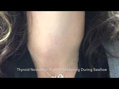 Right Thyroid Nodule Seen During Swallow -  CLICK HERE for the Hypothyroidism Revolution Program! #thyroid #thyroiddiet  #thyroidtreatment #thyroidtest Thyroid nodules can sometimes be easy to see to find just by looking at a patient's neck! Take a look at how this right sided thyroid nodule moves up and down when the patient... - #Thyroid