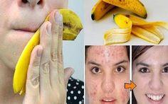Arrêtez de jeter les peaux de banane, voici 6 façons de les utiliser !