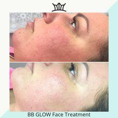 #beautylashesgr #wrinkles #makeuplover #makeupjunkie #makeupblogger #bb #glow #bbglow #bbglowkorea #bbglowgreece #flawless Face Treatment, Medical Spa, Makeup Junkie, Extensions, Bb, Glow, Skincare, Tips, People