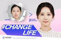 Beauty Clinic, After Surgery, Amazing Transformations, Web Banner, Plastic Surgery, Graphic Design Inspiration, Banner Design, Change, Posters