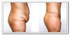 free tummy tuck abdominoplasty - Yahoo Image Search Results - liposuction plastic surgery Tummy Tuck Surgery, Mommy Makeover, Tummy Tucks, Liposuction, Plastic Surgery, Yahoo Images, Get In Shape, Teeth, Image Search