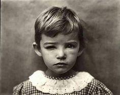 Damaged Child, Sally Mann, 1984
