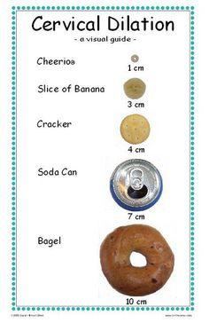 """Great """"visual"""" guide of cervical dilation!"""