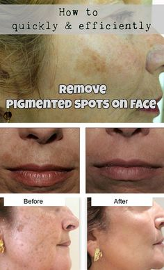 How To Quickly And Efficiently Remove Pigmented Spots On Face