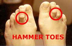 Do you have hammer toes?