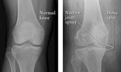 Knee Arthritis Xray