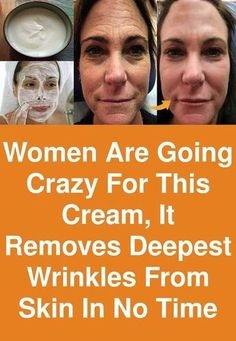 Women are going crazy for this cream, It removes deepest wrinkles from skin in n., Beauty, Women are going crazy for this cream, It removes deepest wrinkles from skin in no time The application of this cream will do all beauty treatments lik. Beauty Care, Beauty Skin, Health And Beauty, Beauty Tips, Diy Beauty, Beauty Products, Face Beauty, Homemade Beauty, Facial Products