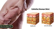 Cellulite is a relentless subcutaneous fat which causes dimpling of the skin that generally shows up on women`s hips and thighs. It is extremely fascinating that, cellulite skin is like the dimpled surface of curds or an orange peel.