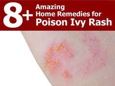KAM Appliances - www.kamonline.com 8+ Amazing Home Remedies for Poison Ivy Rash 1. Cucumber 2. Banana Peels 3. Apple Cider Vinegar 4. Baking Soda 5. Oatmeal 6. Aloe Vera 7. Rubbing Alcohol 8. Lemon Juice 9. Cold Compresses