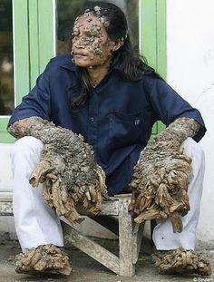 Epidermodisplasia Verruciforme também conhecida como doença do 'homem-árvore', é uma doença hereditária extremamente rara que leva a formação de verrugas na pele que nunca param de crescer. O único tratamento conhecido é a remoção cirúrgica das verrugas que voltam a crescer em seguida, o que exige cirurgias freqüentes. Em 2007, Dede, da Indonésia, teve quase seis quilos de verrugas removidas e hoje necessita novamente de cirurgia para poder utilizar novamente as próprias mãos.