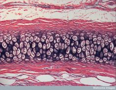 Light micrograph of elastic cartilage of the ear. This is a type of cartilage (connective tissue) that is present in the outer ear. Cells And Tissues, Body Tissues, Anatomy Study, Anatomy Art, Histology Slides, Keep Calm And Study, Human Tissue, 2d Design