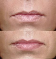 Lips - After the Micro Color Infusion treatment of Dominique Bossavy, Permanent makeup Artist.