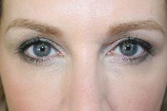 5 behandelingen om rimpels onder je ogen te verminderen