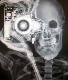 X-ray effect.